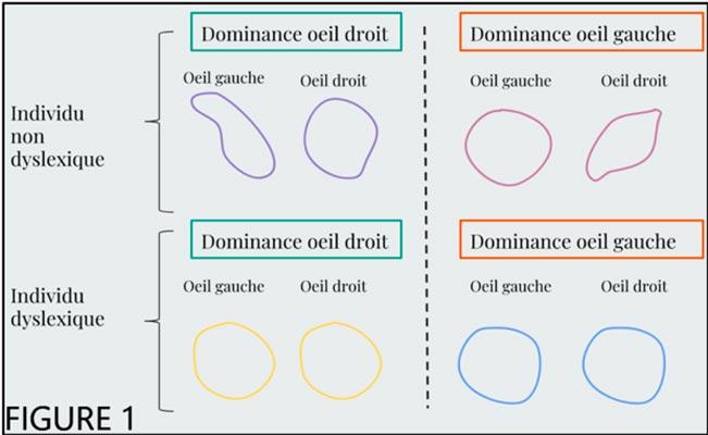 lunettes-contre-la-dyslexie-lexilens-atol-test-fig-1